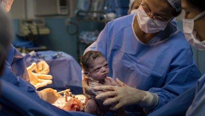 L'espressione arrabbiata della neonata davanti al medico